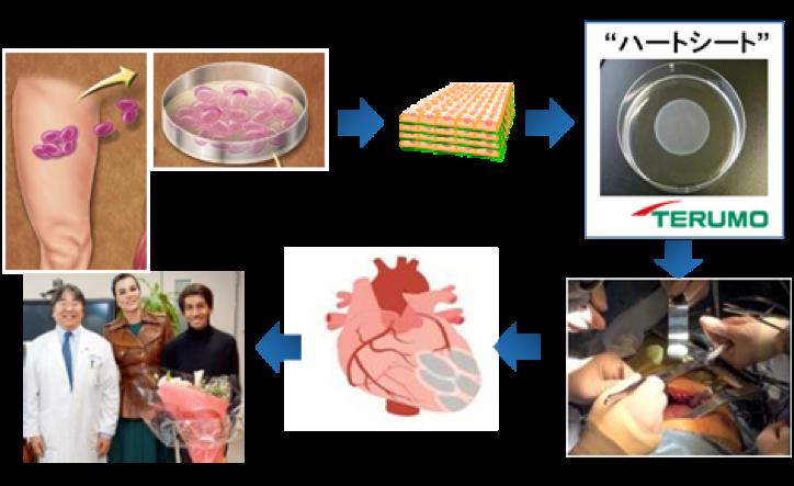 重症心不全に対する筋芽細胞シートの開発